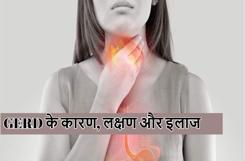 GERD reasons symptoms treatment