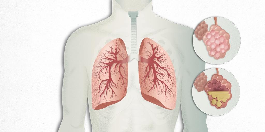 Pneumonia: Causes, Symptoms & Treatments